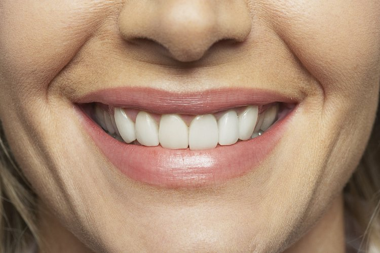 Person with false teeth